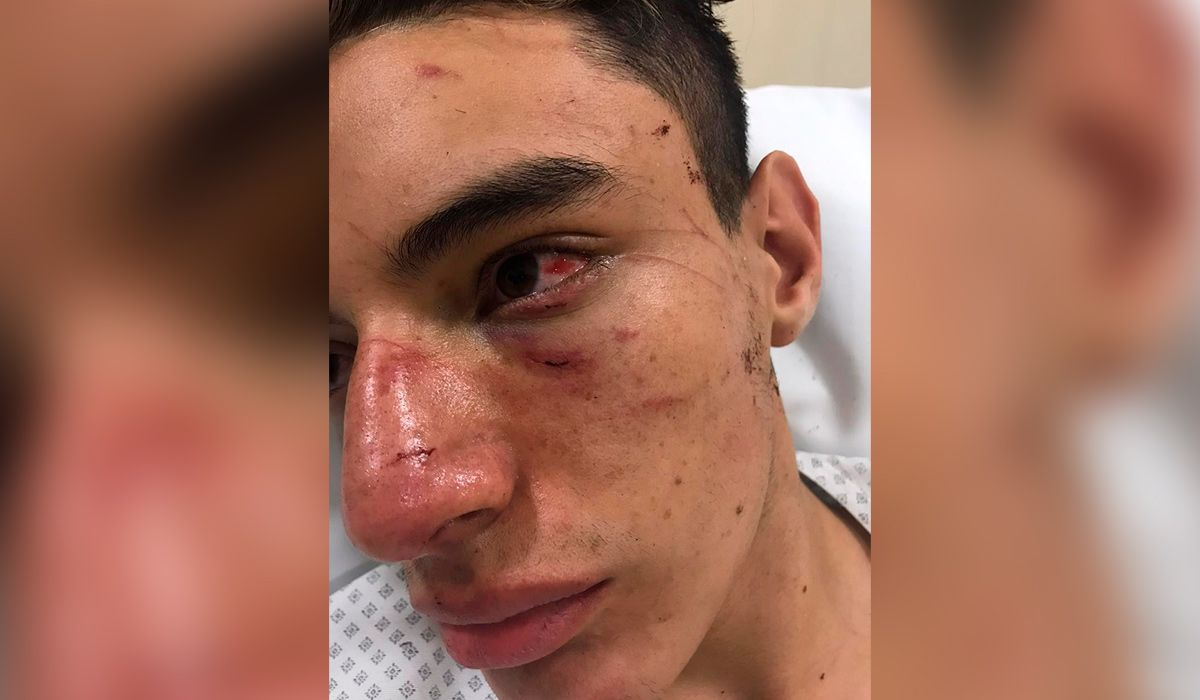 Brutal golpiza a un rugbier: lo dejaron inconsciente