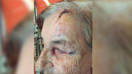 Una pareja de abuelos vive aterrorizada por los golpes y amenazas de su nieto