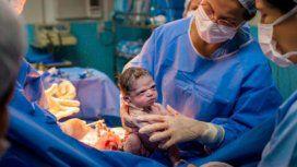 La increíble foto de la beba que nació enojada que causa furor en las redes