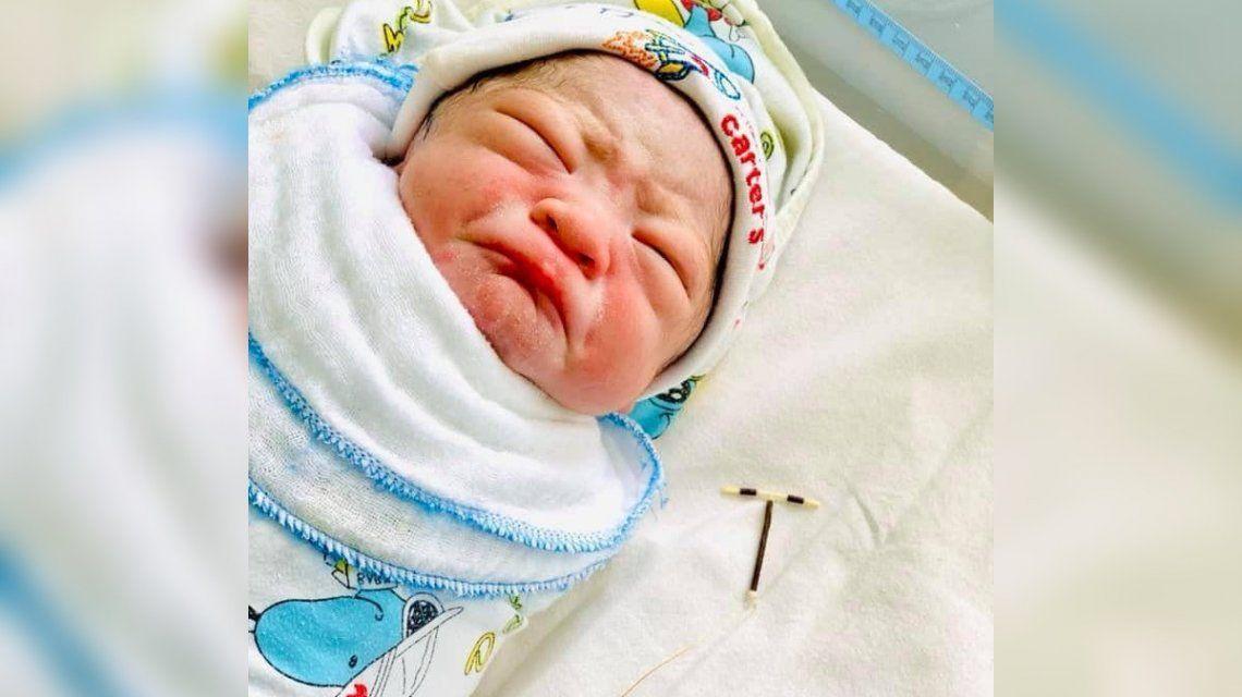 Un bebé nació con el DIU de su madre pegado