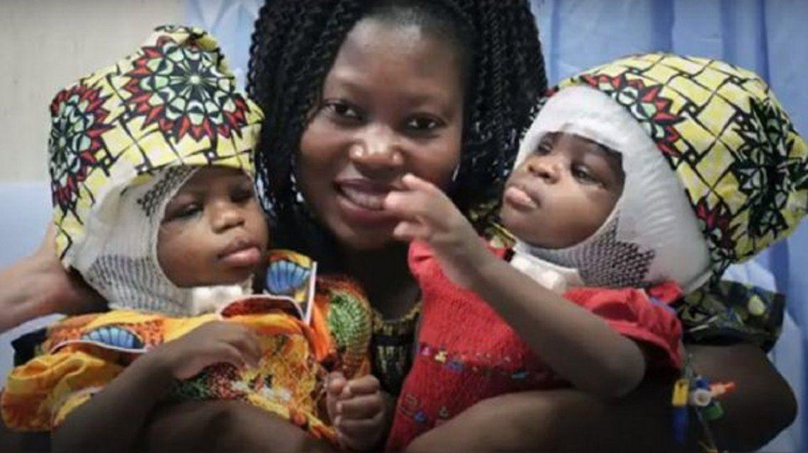 Vaticano: separaron a siamesas unidas por el cráneo