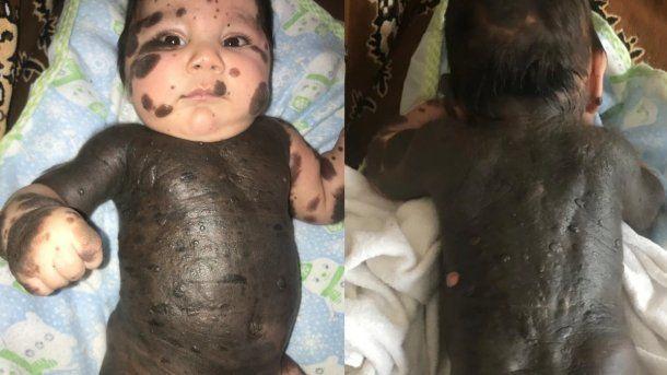 Artyom tuvo que ser operado apenas nació porque tenía espina bífida