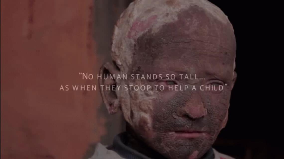 El extraño caso del nene que se está convirtiendo en piedra