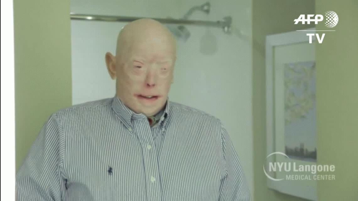 Se cumple un año del trasplante de cara más extenso de la historia
