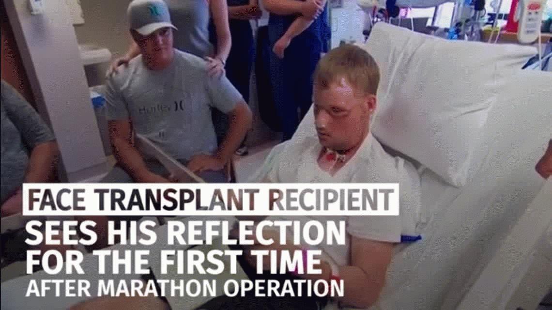 Le hicieron un trasplante de cara y quedó irreconocible