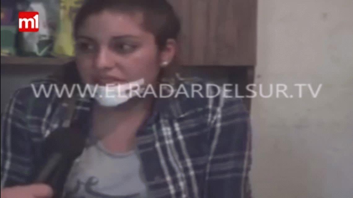 Una joven fue atacada a mordiscones por su ex y le arrancó parte del mentón