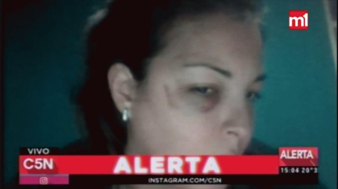 Brutal ataque a una embarazada: su ex pareja la desfiguró y la arrastró