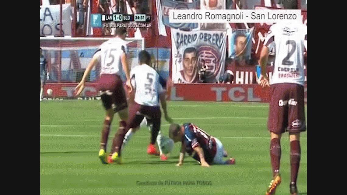 Las lesiones más espeluznantes de futbolistas argentinos alrededor del mundo