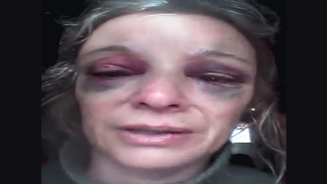 Relato de una víctima de violencia de género: Me partió un ladrillo en la cabeza