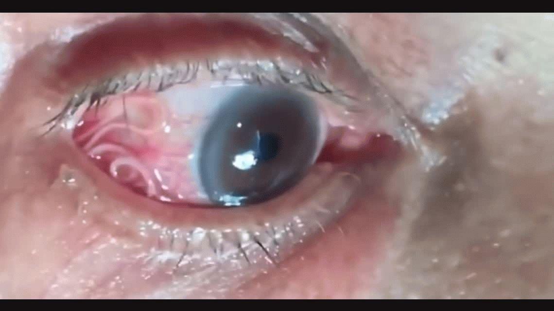 Asqueroso: le creció un gusano en el ojo por la picadura de un mosquito