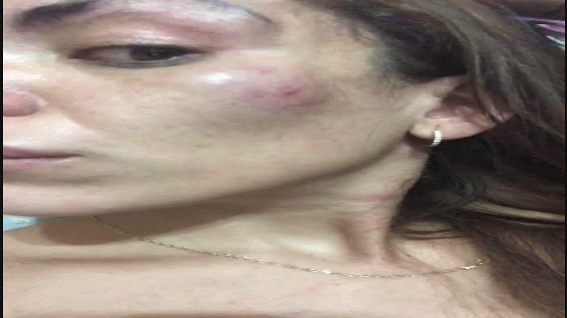 El calvario de una mujer antes de Navidad: su ex le desfiguró la cara y amenazó con matarla