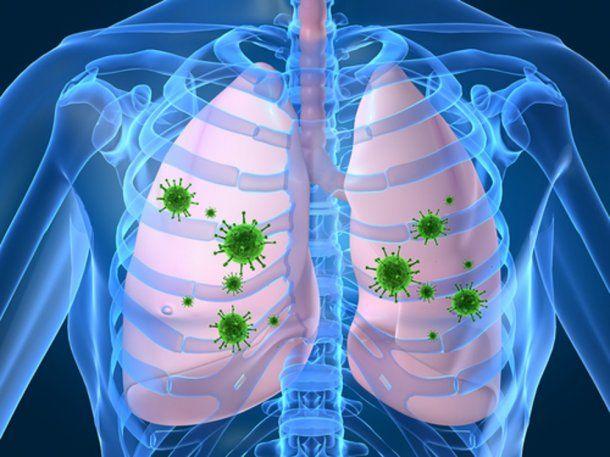 Los virus respiratorios como adenovirus, rinovirus y parainfluenza son muy contagiosos.