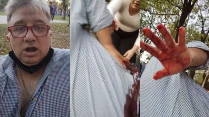 José C. Paz: balearon a un periodista para robarle la camioneta