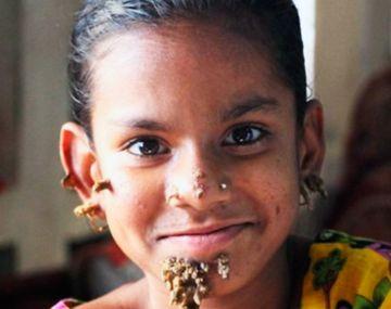 La nena de 10 años tiene las verrugas en la cara